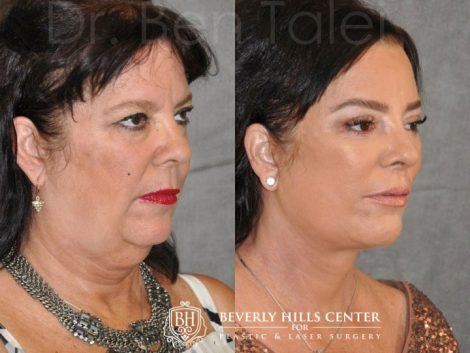 Kris Jenner's Sister – Karen Houghton - AuraLyft with Brow & Eyelid Rejuvenation - Right Side