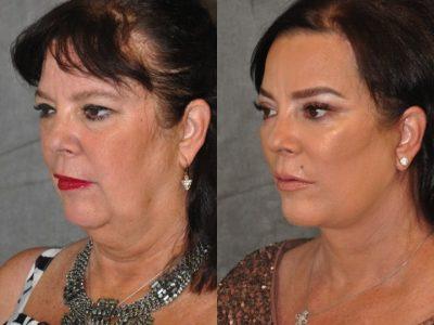 Kris Jenner's Sister – Karen Houghton - AuraLyft with Brow & Eyelid Rejuvenation - Left Side