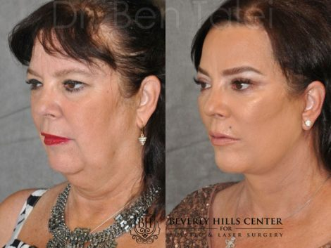 Kris Jenner's Sister – Karen Houghton - AuraLyft with Brow & Eyelid Rejuvenation - Left Side