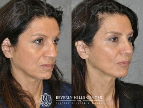 Revision Reconstruction Rib Rhinoplasty - Right Side
