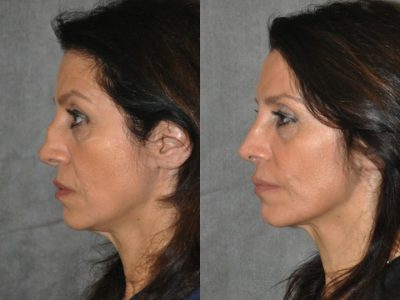 Revision Reconstruction Rib Rhinoplasty - Left Side
