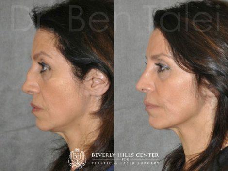 Revision Reconstruction Rib Rhinoplasty - Left Side