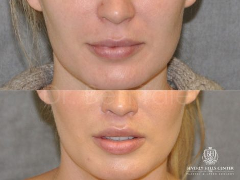 Modified Upper Lip Lift for improved facial balance - Front
