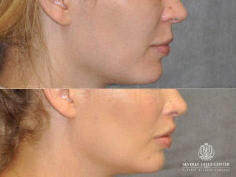 Modified Upper Lip Lift for improved facial balance - Right Side