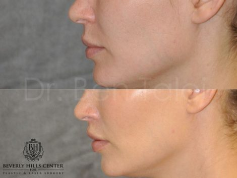 Modified Upper Lip Lift for improved facial balance - Left Side