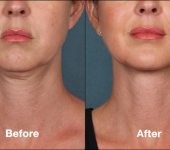 Beverly Hills Center Female Patient Before and After Chin Kybella Injections Treatment