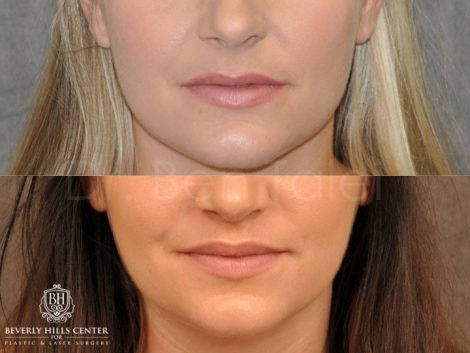 Modified Upper Lip lift for character – Front