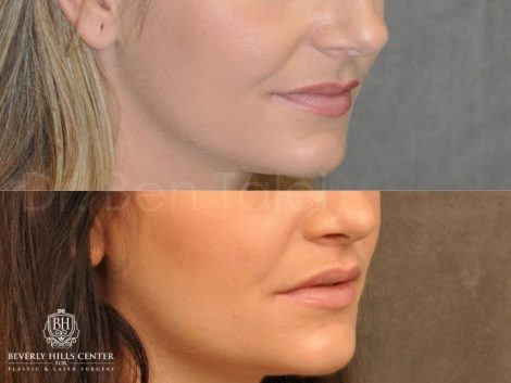 Modified Upper Lip lift for character – Right Side