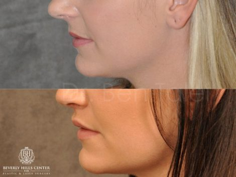 Modified Upper Lip lift for character – Left Side