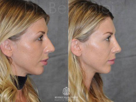 Rhinoplasty - Right Side