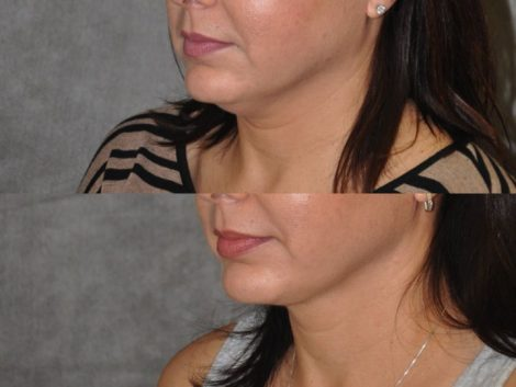 MicroLiposuction of the Neck and Chin - Left Side