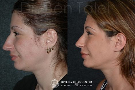 Minimally Invasive (Closed) REVISION Rhinoplasty - Left Side