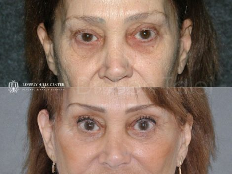 Revision Face and Neck Lift - Front
