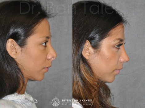 Revision Reconstruction Rhinoplasty - Right Side