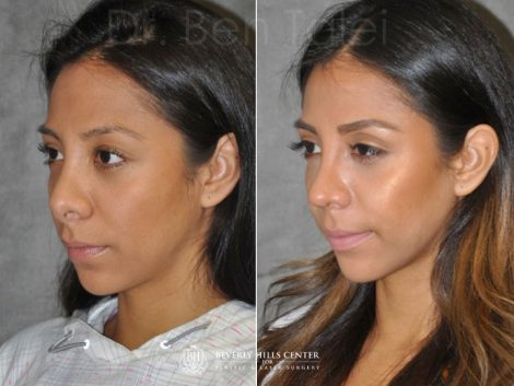 Revision Reconstruction Rhinoplasty - Left Side