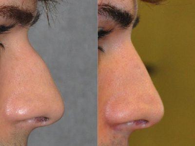 Non Surgical Liquid Rhinoplasty / Filler Nosejob