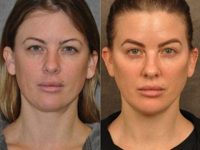 MiniLift / Neck Lift with cheek fillers and dysport – Front