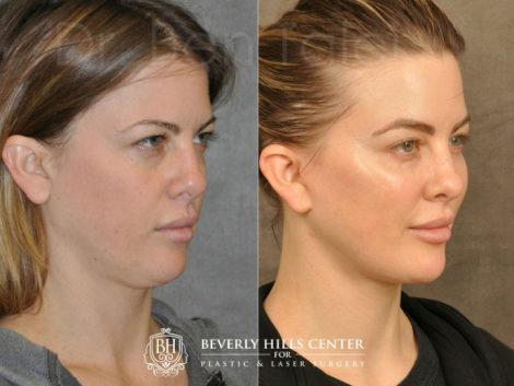 MiniLift / Neck Lift with cheek fillers and dysport – Right Side