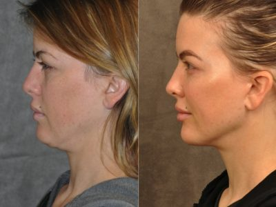 MiniLift / Neck Lift with cheek fillers and dysport – Left Side