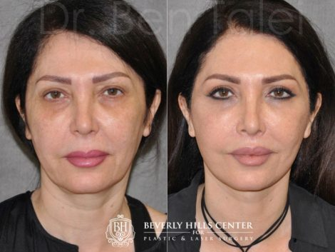 AuraLyft & Lip Lift with Upper Eyelid Rejuvenation - Front