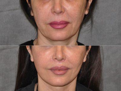AuraLyft & Lip Lift with Upper Eyelid Rejuvenation - Front