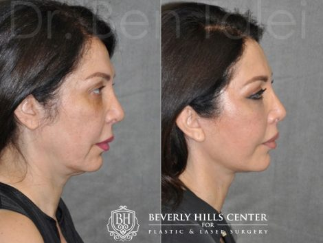 AuraLyft & Lip Lift with Upper Eyelid Rejuvenation - Right Side