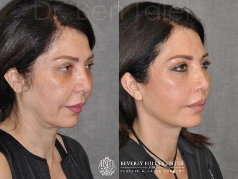 AuraLyft & Lip Lift with Upper Eyelid Rejuvenation - Right Side