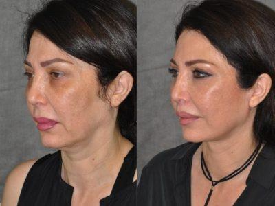 AuraLyft & Lip Lift with Upper Eyelid Rejuvenation - Left Side
