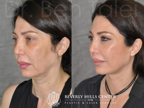 AuraLyft & Lip Lift with Upper Eyelid Rejuvenation - Left Side