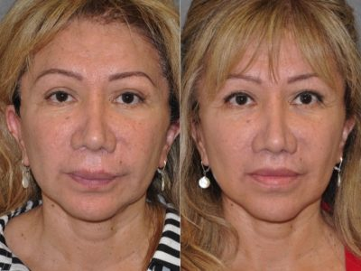 Corrective Modified Upper Lip Lift and Lip Border Revision - Front