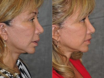 Corrective Modified Upper Lip Lift and Lip Border Revision - Right Side