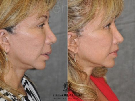 Corrective Modified Upper Lip Lift and Lip Border Revision - Right Side
