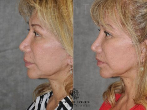 Corrective Modified Upper Lip Lift and Lip Border Revision - Left Side
