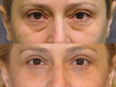 Upper & Lower Eyelid Lift - Front