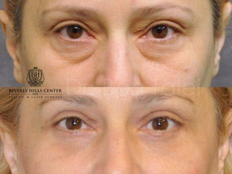 Upper & Lower Eyelid Lift - Front