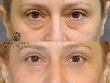 Painless AuraLyft with Upper Eyelid Ptosis (Drooping) repair - Front