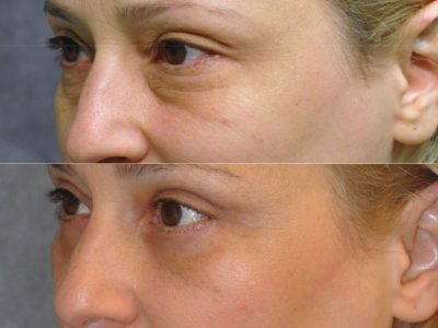 Upper & Lower Eyelid Lift - Left Side