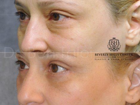 Upper & Lower Eyelid Lift - Left Side