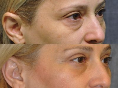 Upper & Lower Eyelid Lift - Right Side