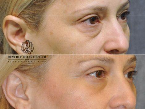 Upper & Lower Eyelid Lift - Right Side