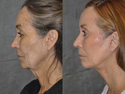 Painless AuraLyft with Upper Eyelid Ptosis (Drooping) repair - Left Side