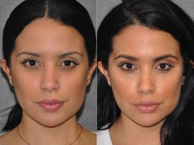 Lip, Cheek and Eye Enhancement - Front