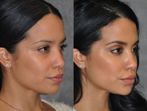 Lip, Cheek and Eye Enhancement - Right Side