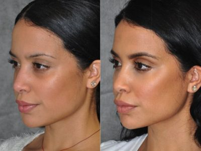 Lip, Cheek and Eye Enhancement - Right Side
