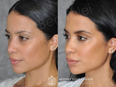 Lip, Cheek and Eye Enhancement - Left Side