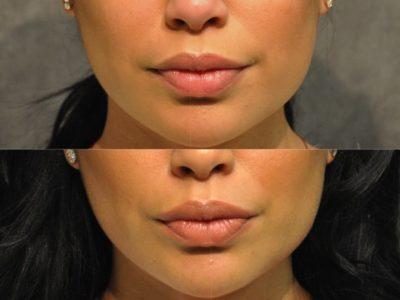 Lip Enhancement - Front