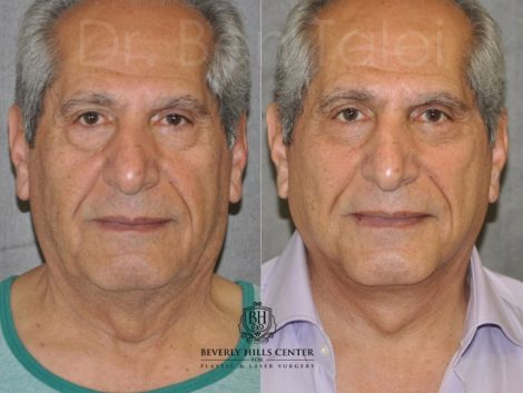Lower Eyelid Tightening - Front