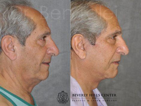 Lower Eyelid Tightening - Right Side