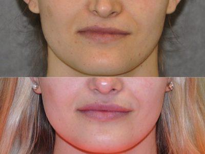 Lip augmentation - Front