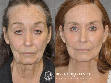 Upper Eyelid Ptosis (Drooping) Repair combined  with a Painless Deep Plane SMART Lift for facial rejuvenation - Front